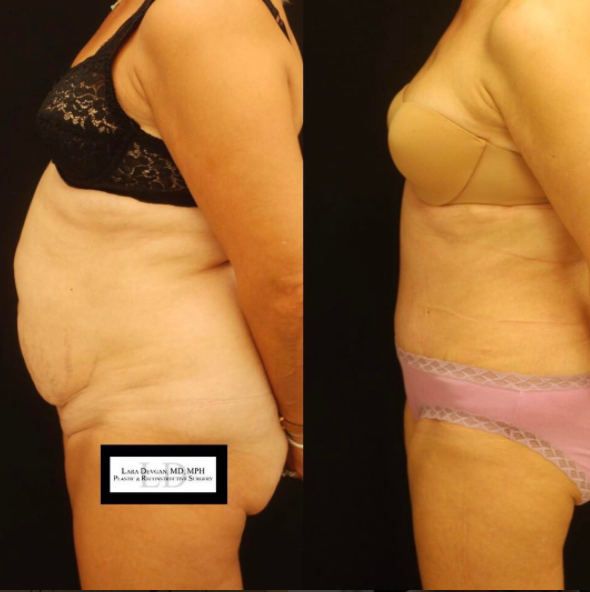 Tummy tuck patient of Dr. Devgan. Before (left), after (right)