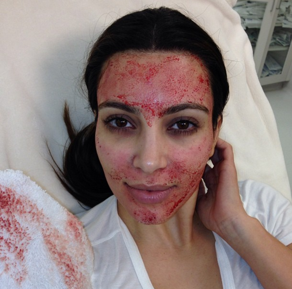 "Kim Kardashian after a ""Vampire Facial"""