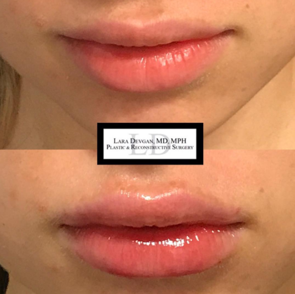 Lip augmentation performed in Dr. Devgan's New York City office