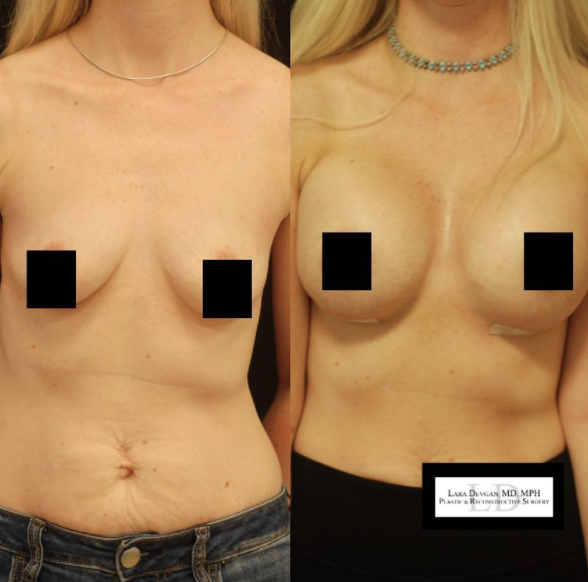 Breast augmentation by Dr. Devgan