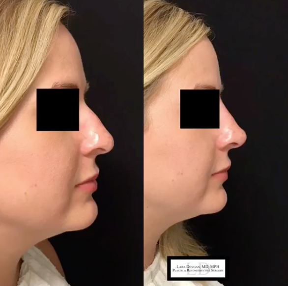 Dorsal hump and tip refinement using fillers