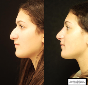 Dr. Devgan's before and after of a surgical rhinoplasty.