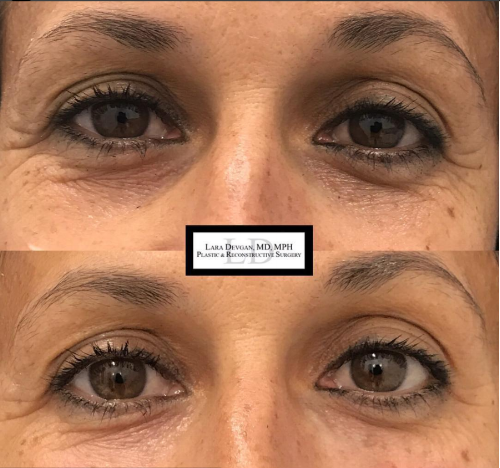 Dr. Devgan's results from tear trough augmentation.