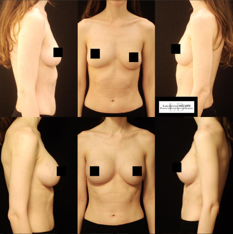 best plastic surgeon for breast augmentation