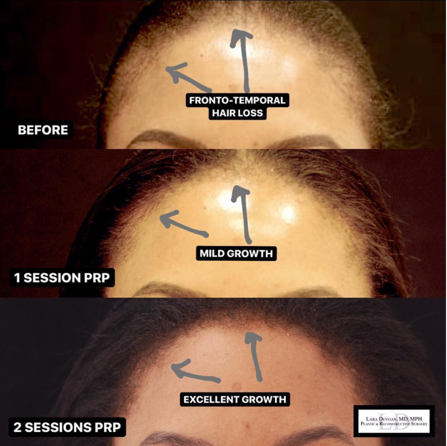 best plastic surgeon for hair loss