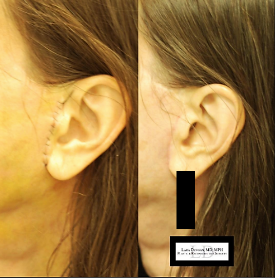 Facelift/necklift scare 5 days after (right), and 5 weeks after (left).