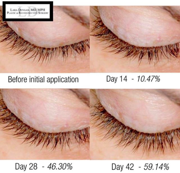 Platinum Long Lash before after eyelash serum