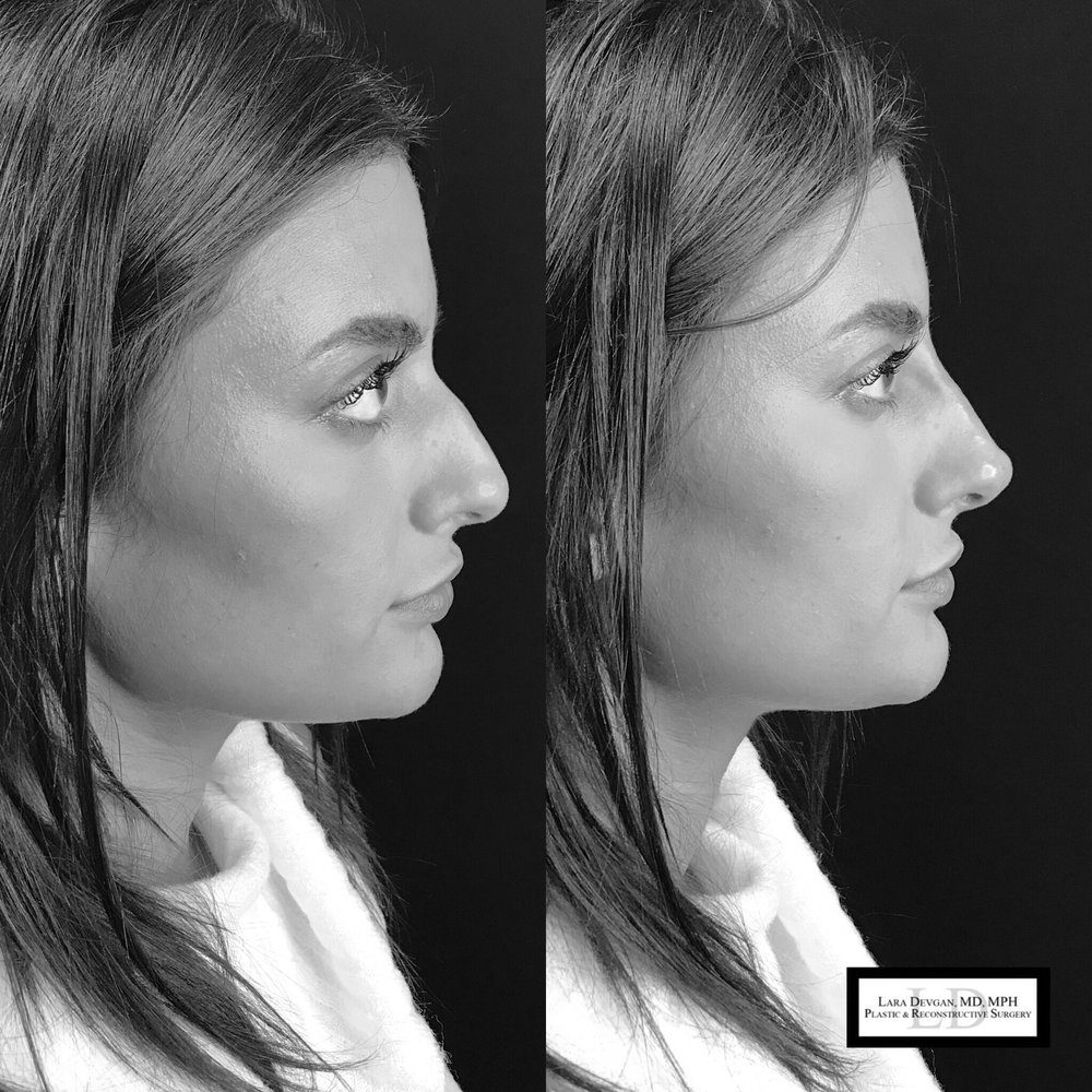 nonsurgical rhinoplasty nyc