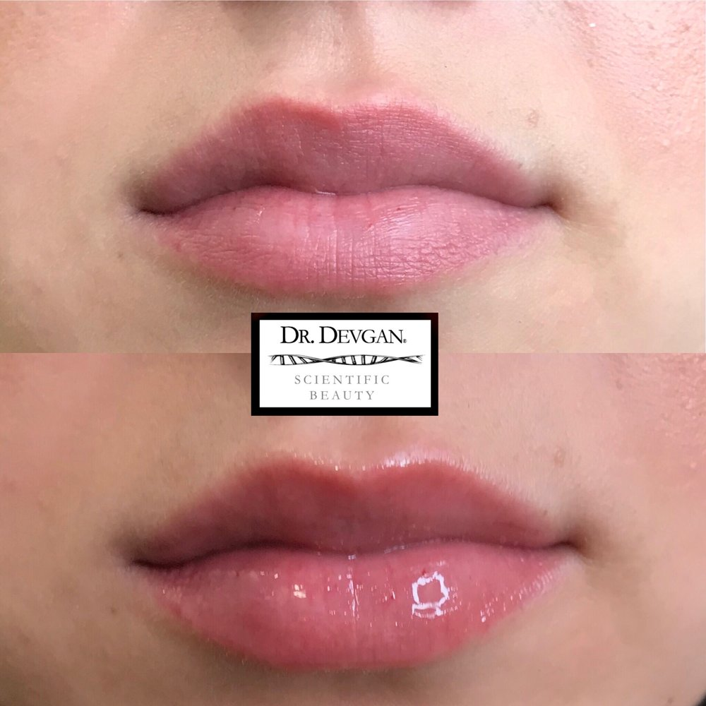 Previous clinical trial participant, Platinum Lip Plump