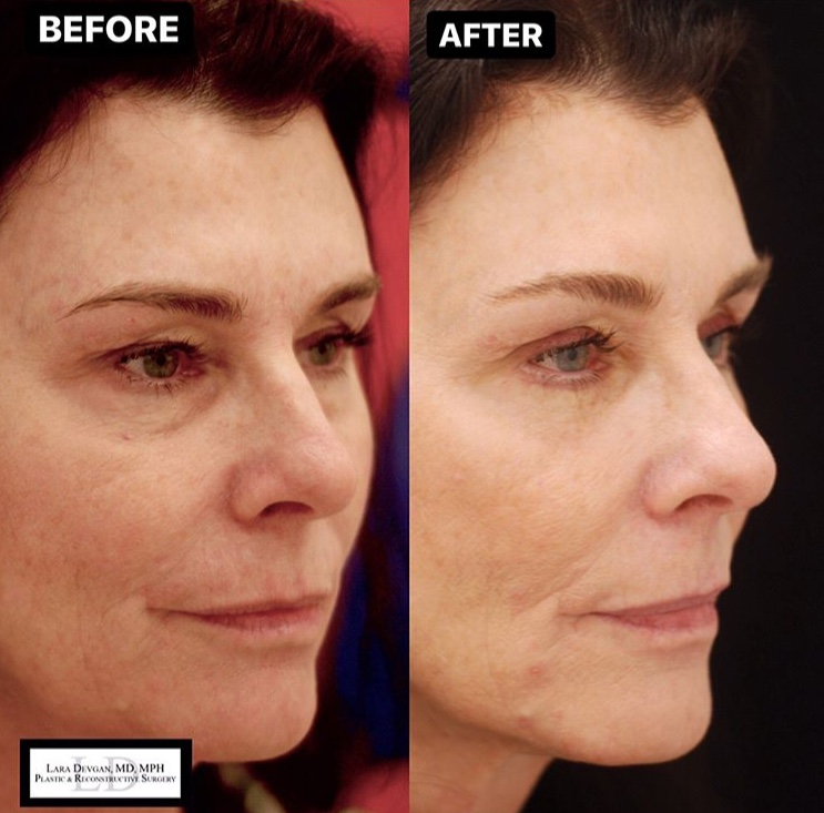 With an ideal result just 6 weeks after upper and lower eyelid blepharoplasty surgery, this patient maintains the natural character of her eyes and has no evidence of surgery.