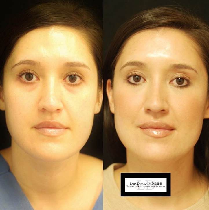 Three weeks after tear trough augmentations, this patient shows a natural and subtle change making her look refreshed.