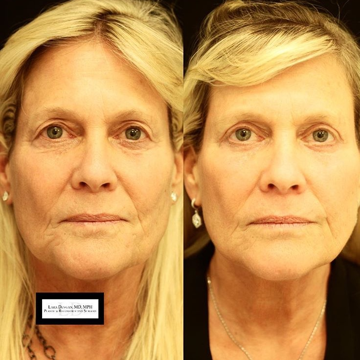 Six weeks after upper and lower blepharoplasty surgery, this beautiful patient show rejuvenated eyes.