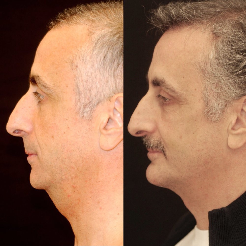 Significant yet subtle improvement of neck and chin in a recent patient
