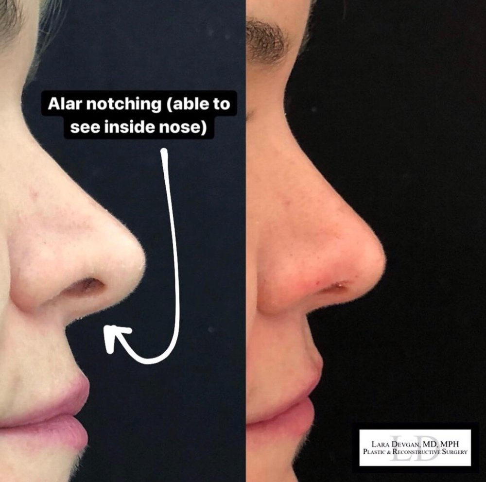 Non-surgical rhinoplasty addressing cosmetic concerns regarding the base of the nose.