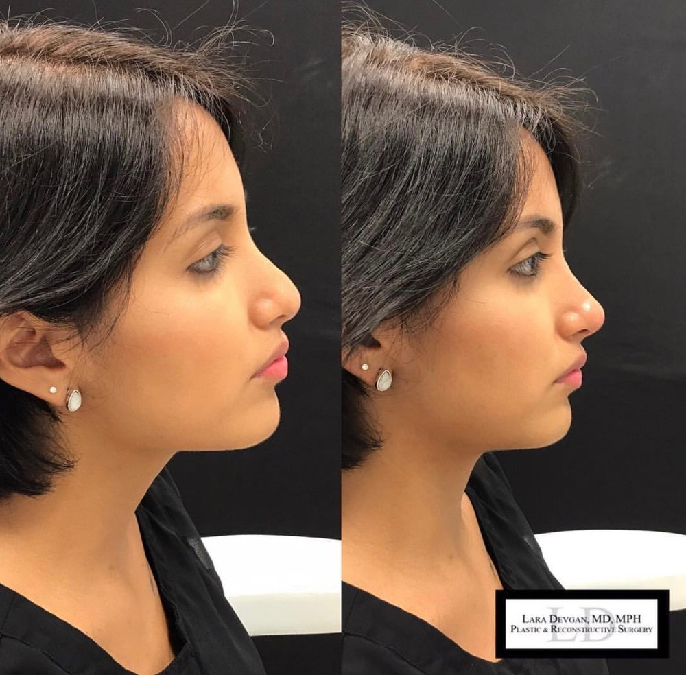 Non-surgical rhinoplasty used to refine the tip of the nose.