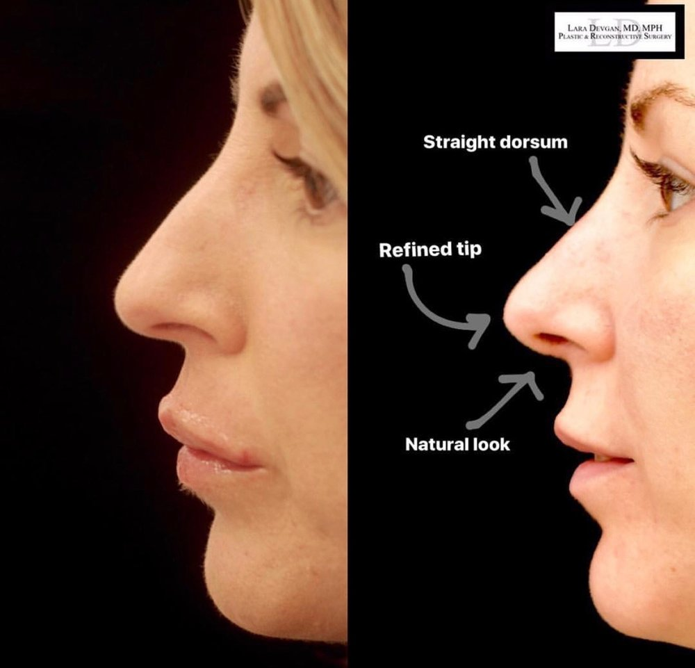 Traditional rhinoplasty on a patient of Dr. Devgan.