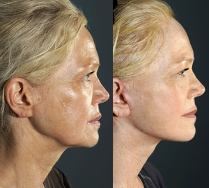 Actual patient of Dr. Devgan, before and after short scar facelift & necklift