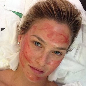 Bar Rafaeli, image credit herself, demonstrating microneedling being combined with growth factor/ PRP treatment