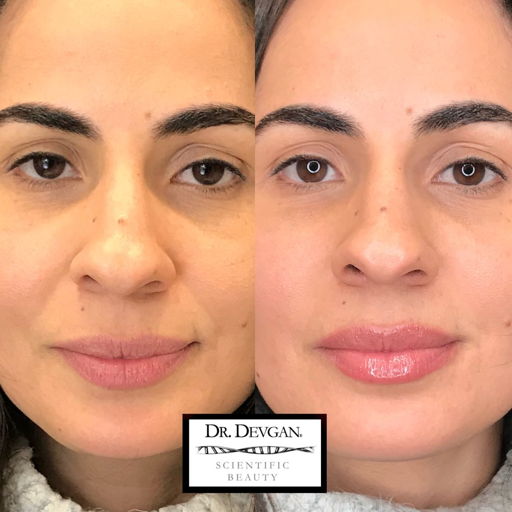 Before and after photos of a beautiful client using Platinum Lip Plump