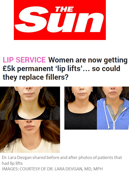 The Sun, a United Kingdom newspaper, features Dr. Devgan's lip lift