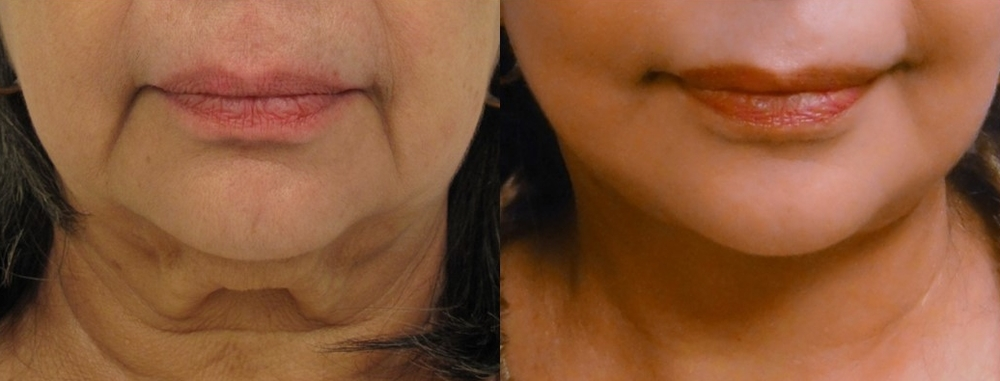 Actual patient of Dr. Devgan, ethnicity: Middle Eastern. Before & 2 months after facelift