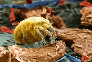 photo_of_dust_mite1-300x203.jpg