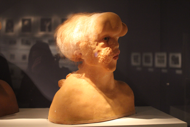 The Elephant Man's head