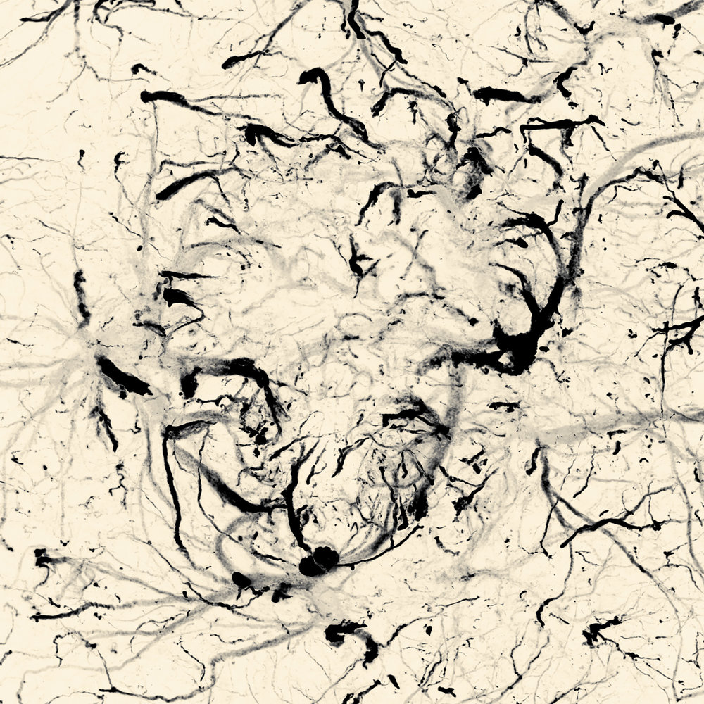 Moments Meant To Pass IV, 40 x 40 cm inkjet on canvas. Microglia surrounding an amyloid plaque. Captured for Jürgen Götz lab for their 2015 publication in Translational Medicine for ultrasound treatment of Alzheimer's disease.