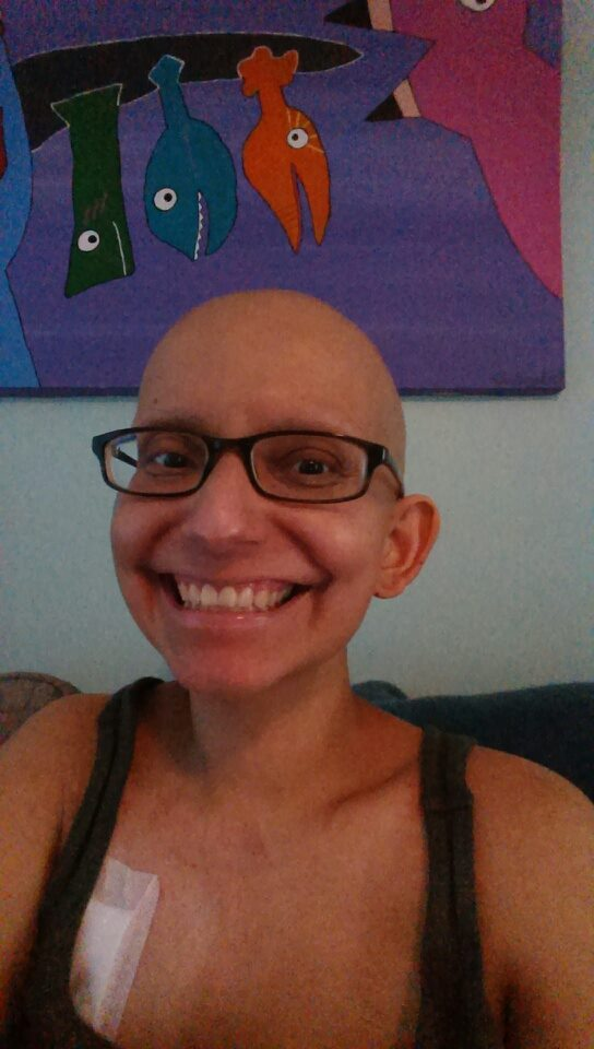 Josie after her stem-cell transplant