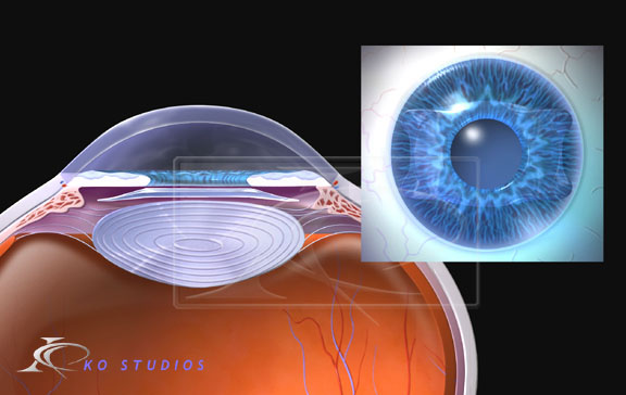 Staar® Interocular Lens (IOL)