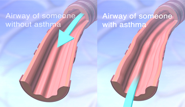Asthma airways and normal bronchioles.   KO Studios ©2012, All rights retained