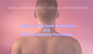 Cervical Facet Syndrome KO Studios ©2013 All Rights Reserved
