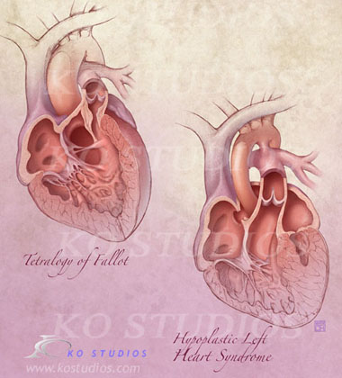 Congenital Heart Conditions in Infants 2