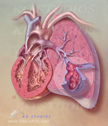 Pulmonary Embolism in Lung with Heart