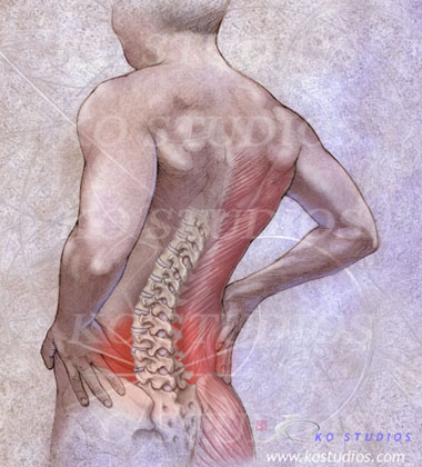 Back Pain in Pencil Style
