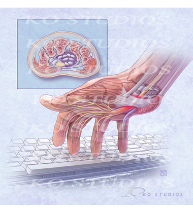 Carpal Tunnel with Keyboard