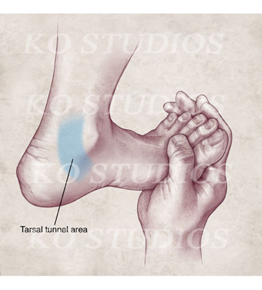 Tarsal Tunnel of Foot