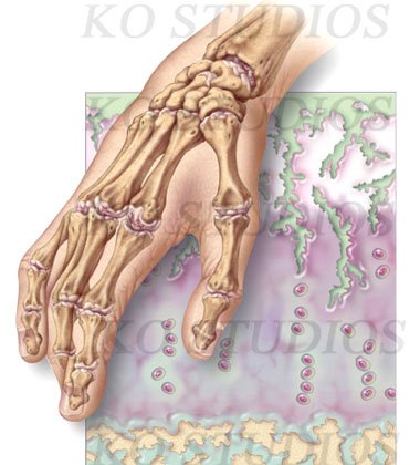 Osteoarthritis Histology
