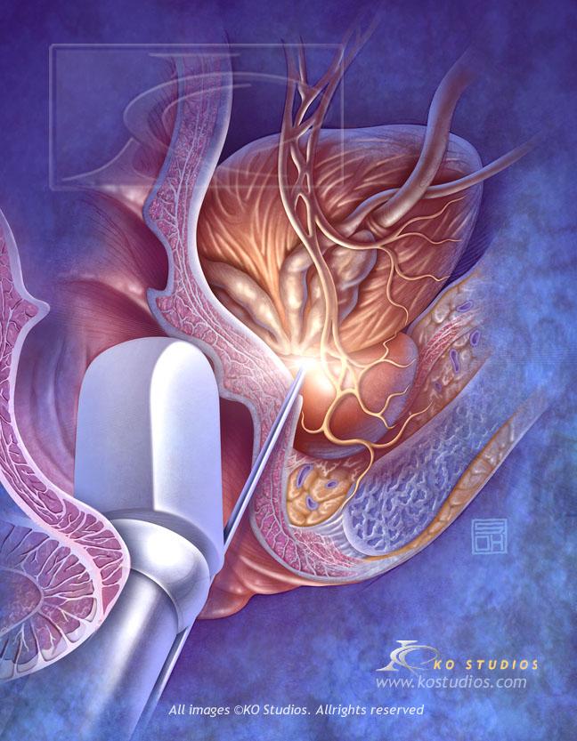 Transrectal Ultrasound (TRUS)
