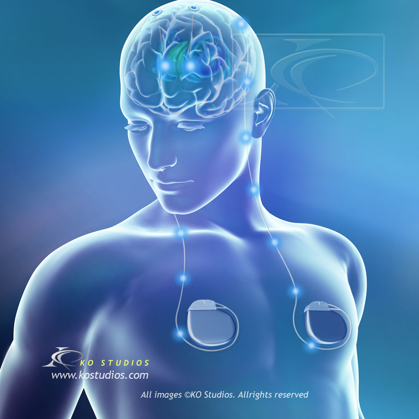Parkinson's Disease and Deep Brain Stimulators