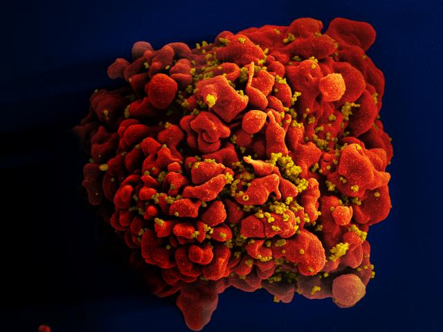 A human T cell infected by numerous HIV particles. (Source: NIAID)