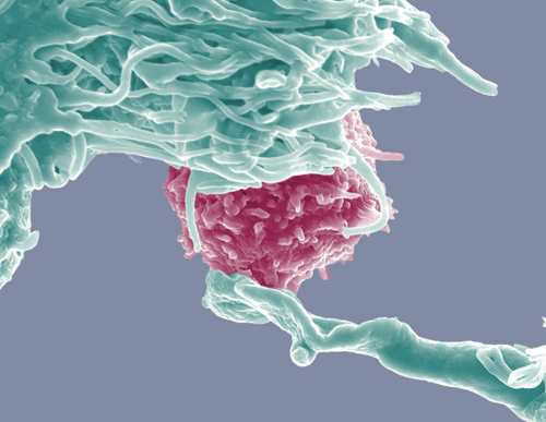 A plasmacytoid dendritic cell (blue) interacting with a T-cell (pink).