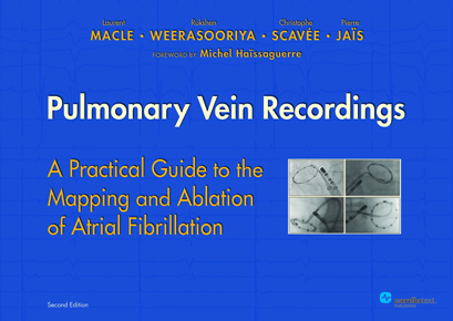 Pulmonary Vein Recordings 2nd Edition
