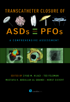 Transcatheter Closure of ASDs and PFOs: A Comprehensive Assessment Hijazi, 2010