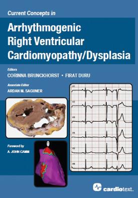 Current Concepts in Arrhythmogenic Right Ventricular Cardiomyopathy / Dysplasia Brunckhorst, 2014