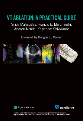 VT Ablation: A Practical Guide Mahapatra, 2014