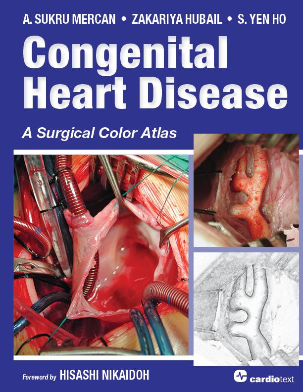 Congenital Heart Disease Ho 9781935395904 Cardiotext Publishing