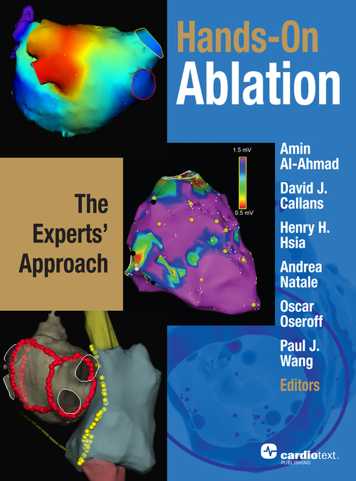 Hands-On Ablation 1st Edition