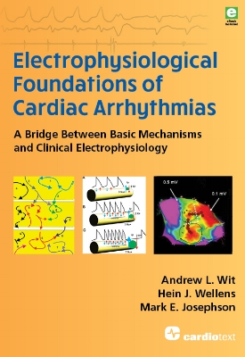 Electrophysiological Foundations of Cardiac Arrhythmias: A Bridge Between Basic Mechanisms and Clinical Electrophysiology Wit,  2017