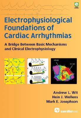 Electrophysiological Foundations of Cardiac Arrhythmias: A Bridge Between Basic Mechanisms and Clinical Electrophysiology Wit, 2017
